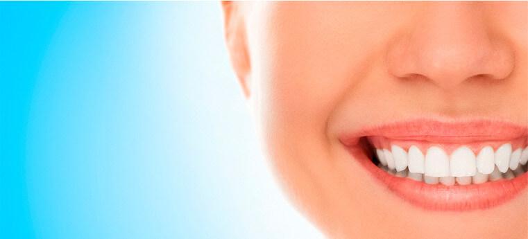 Clareamento Dental Rma Odontologia
