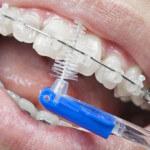 Como escovar os dentes com aparelho: Aprenda hoje!