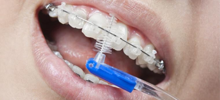 Como escovar os dentes com aparelho ortodôntico estético