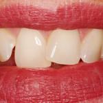 Meus dentes da frente são tortos, posso usar aparelho?