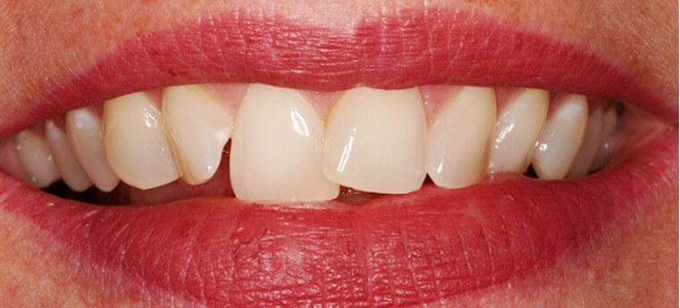 Dentes da frente tortos