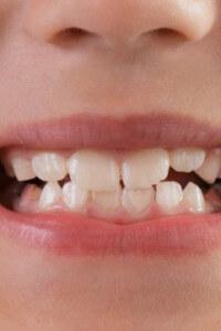 Todos os dentes de leite caem?
