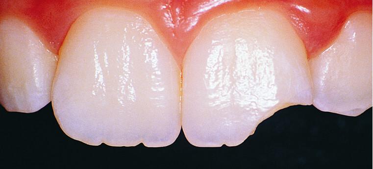 Dente fraturado