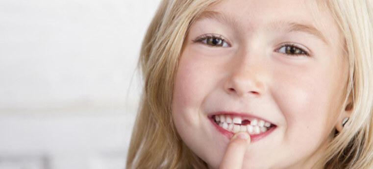 Menina perdeu dente mole