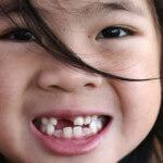 O dente do meu filho não nasce, o que devo fazer?