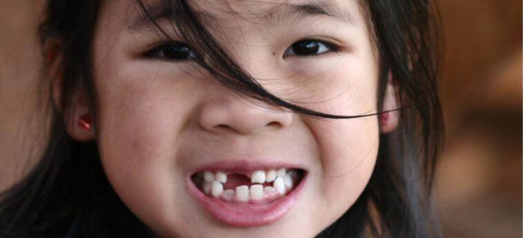 O dente do meu filho não nasce