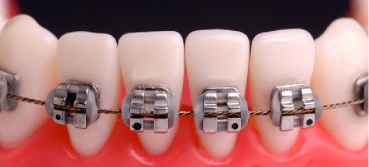 Posso colocar aparelho apenas nos dentes de baixo