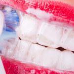 Gengivite: Causas, Sintomas e Tratamentos