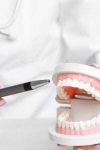 Como funciona a prótese dentária fixa