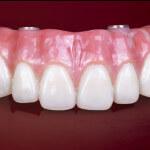 Dentes de porcelana para prótese total