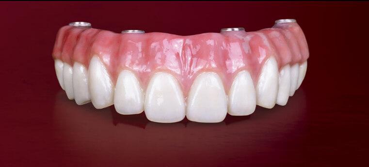 Dentes de Porcelana pata Prótese Total