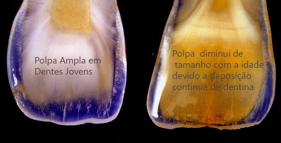 Envalhecimento torna os dentes amarelos